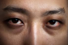 are dark circles and under eye bags caused by lack of sleep