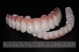 Implant supported dentures - Denture on dental implants - Bauer Smiles