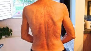relief and it isn t dapsone celiac