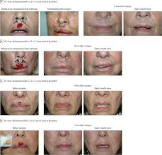 bilateral transposition lip flaps a