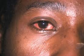 Image result for dark skin people suffering from Conjunctivitis'