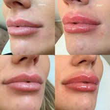 Love these lush lips that left the... - Cosmetic Nurse Penny Dunn | Facebook