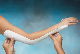 Long Arm Precut Splint North Coast Medical