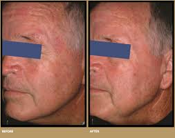 Levulan Blue Light Treatment Pdt Blue Light In Waterloo And Kitchener Cosmederm