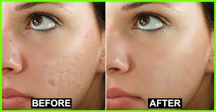 Image result for How to Remove Pimple Over Night In 3 simple steps.