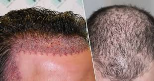 Hair Transplant Market Current Scenario And Trends To 2019