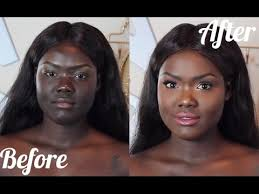 how to match your face to your body dark skin hyperpigmentation