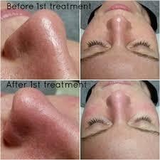 blocked pores skin tone pea beauty lounge