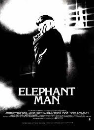 Assitir O Homem-Elefante