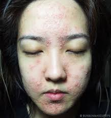 My Horrific Post-Facial Experience. You Need To Read This.   Bun Bun ...
