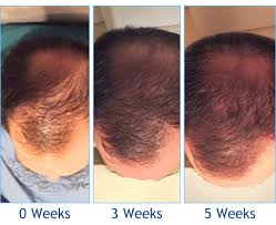 koher prp suffering from hair loss
