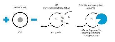 Overview Angiodynamics
