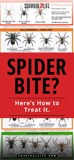 Spider Bite? Here's How To Treat It   How to Handle a Spider Bite ...