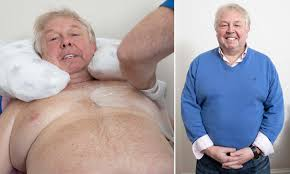 Nick Ferrari Reveals The Procedure That Resolved His Lifelong Battle With Gynaecomastia Daily Mail Online