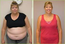 elizabeth had tried more than seven diffe weight loss methods and had a progressively failing