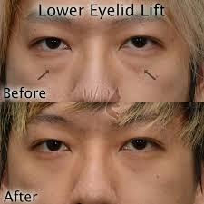 Gently massage the contact through your eyelid. Eyelid Flip Ectropion Causes Symptoms And Complications Eyelid Flip Eyelid Flip By Powerfulgirl10 On Deviantart Detpmblog