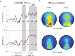 Transcranial Direct Current Stimulation Tdcs Induced