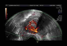 Using ultrasound to connect endometriosis and infertility. Uncovering Endometriosis Vs Endometrial Cancer Empowered Women S Health