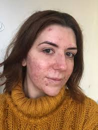 if you know me you know i ve suffered with my skin for years and it s affected a lot of social events i should ve been at regardless of how ugly i felt