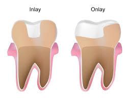 dental onlay inlays and onlays bergen county nj river edge nj paramus nj