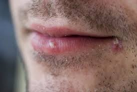 do herpes ps have a whitehead vrqr