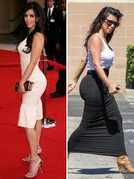 Did kim kardashian have butt implants