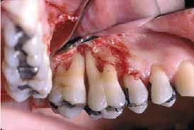 Maxillary Second Molar Grade I Furcation Involvement Of Maxillary Second Molar Grade Ii