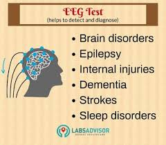 upto 50 off on eeg test cost in india