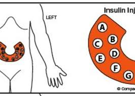 Insulin Injection Site Rotation Label Shop Compact
