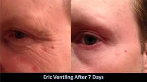 deep eye wrinkle treatment
