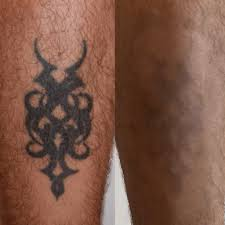 Think Before You Ink My Tattoo Removal At Pulse Light Clinic