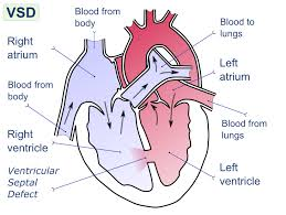 Pathophysiology Of Ventricular Septal Defect In Flow Chart Ventricular Septal Defect Pathophysiology Wikidoc