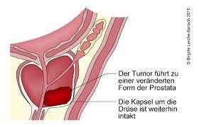 Prostatakrebs durch radfahren