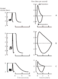 Pft Test Results Chart An Approach To Interpreting Spirometry American Family