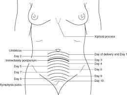 17 Methodical Fundal Height Postpartum