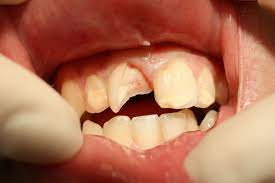 Chipped Tooth- How to Fix Broken Teeth Le Sueur-Le Sueur Family Dental