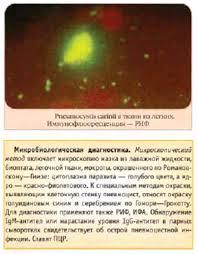 Реферат Протозойные инфекции дыхательной системы пневмоцистная  Протозойные инфекции дыхательной системы пневмоцистная пневмония
