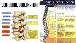 Vertebral Subluxation Chart Is Subluxation Really A New And Accurate Diagnosis Blog