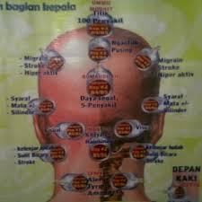 Image result for bekam tengkuk