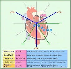 Location Chart Mi Location Chart Cardiac Nursing Icu Nursing Cardiology