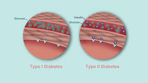 what s the difference between type and type diabetes what s the difference between type 1 and type 2 diabetes diabetes center everyday health
