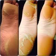 Pedicurepraktijk Healthy Feet - Home Facebook