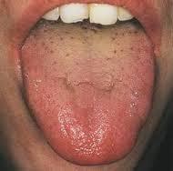 Ayurveda Tongue Chart Ayurvedic Tongue Analysis What Does Your Tongue Say About