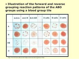 Blood Typing Ppt