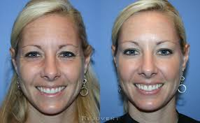 the best botox in scottsdale is here