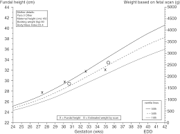 Iugr Vs Sga Growth Chart Fetal Growth And Wellbeing Section 6 Fetal Medicine