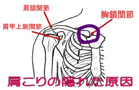 「肩こり 鎖骨」の画像検索結果