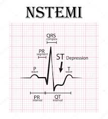 Ecg Of Non St Elevation Myocardial Infarction Nstemi And Detail Of