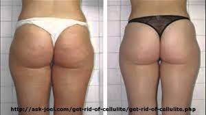 Get rid of butt cellulite