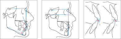 comparative study of dental cephalometric patterns of ese figure 2 cephalometric variables